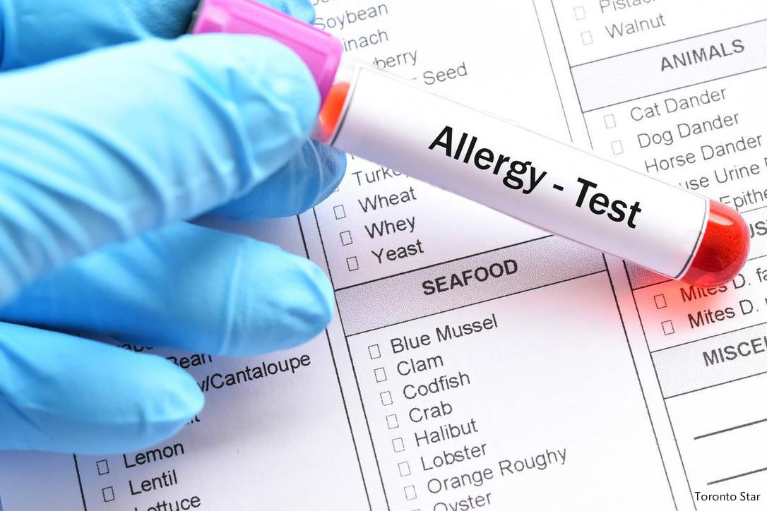 Think you have a food allergy You might be wrong